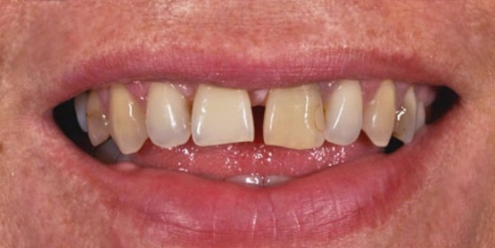 Porcelanaste zobne luske